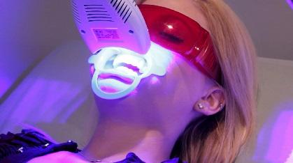 dentista blanqueamiento dental