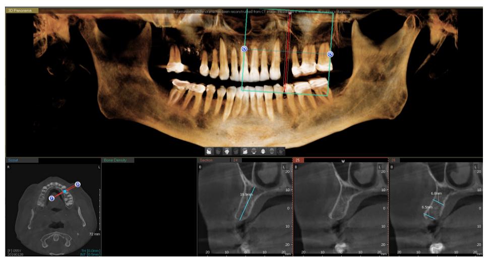 El flujo digital en el dentista